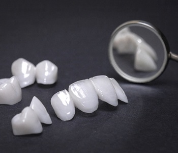 picture of a variety of metal-free restorations