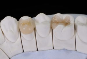 tooth-colored dental filling