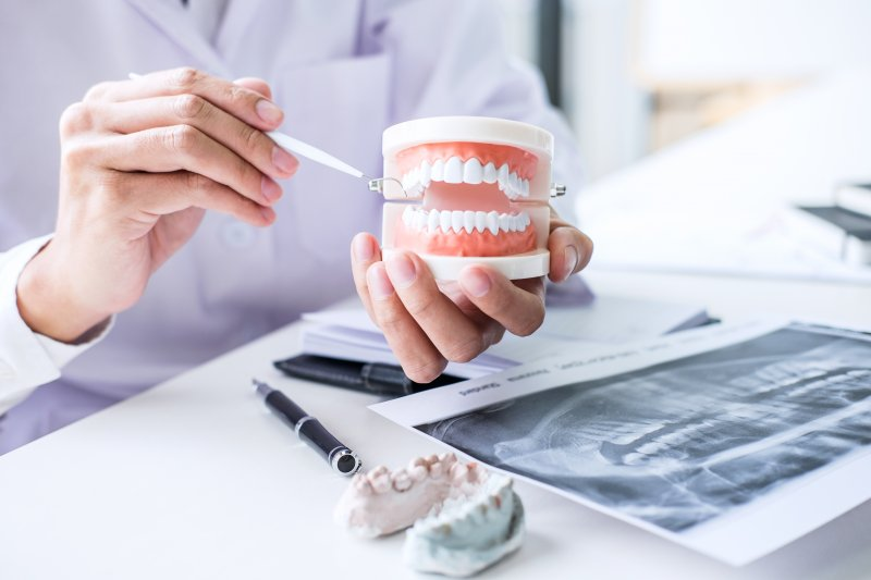 Dentist pointing to model of teeth next to X-ray